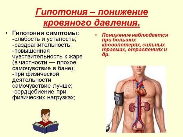 Гипотония, как правило, не считается поводом для оформления больничного
