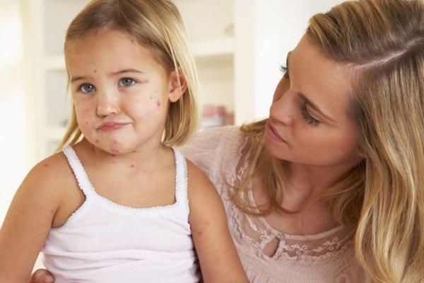 Чтобы выздоровление наступило быстро, ребенок должен быть изолирован – для этого родителю выдают больничный