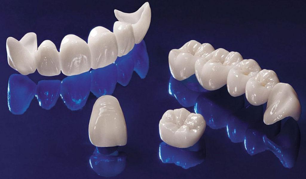 Фарфоровые зубные протезы не оплачиваются средствами государства