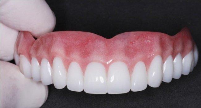 Гарантийный срок для зубных протезов составляет один год