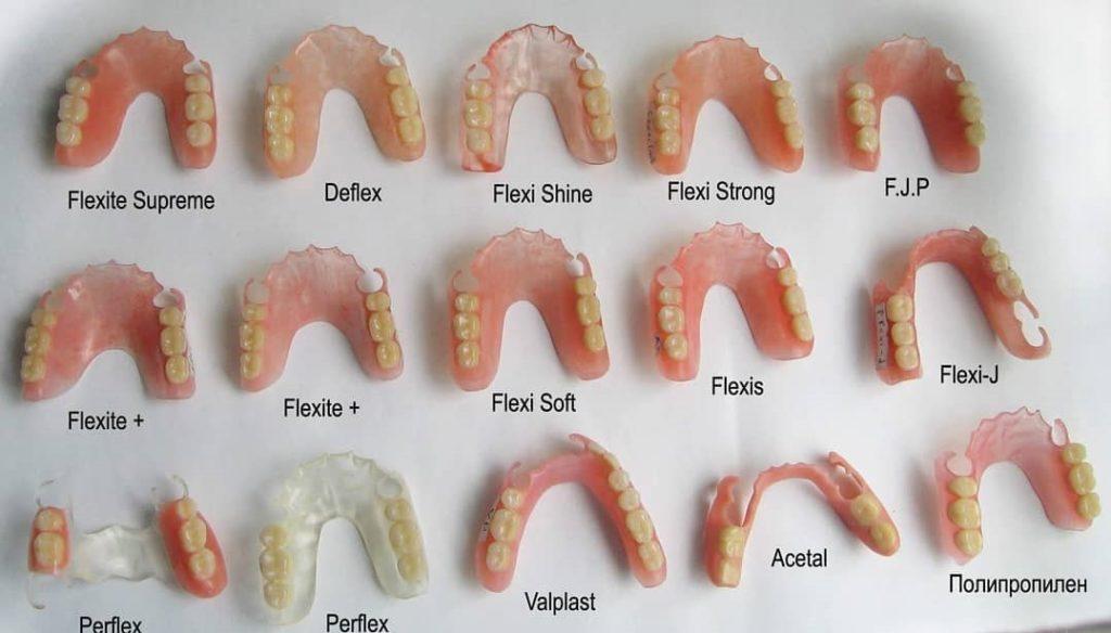 Замена зубных протезов осуществляется только при обнаружении аллергии на установленный материал
